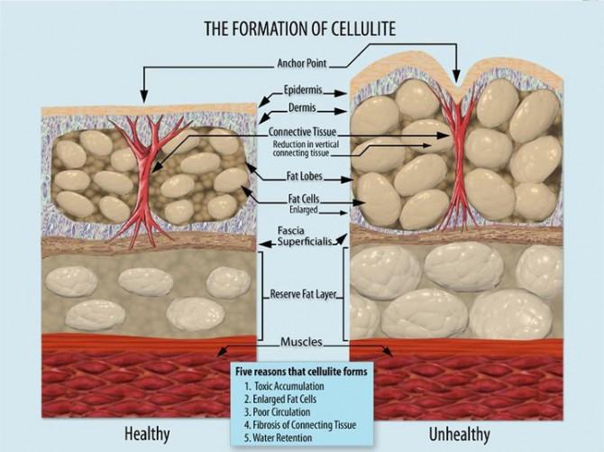 السيلوليت .. أسبابه وعلاجه …